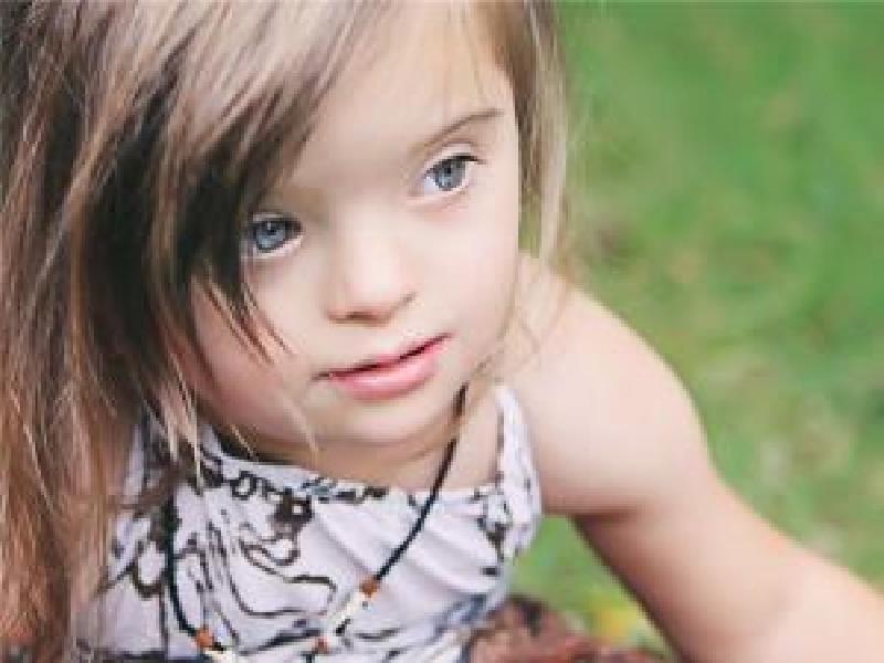 Крымчане стали меньше отказываться от детей с синдромом Дауна