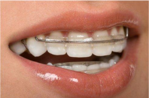 Ламинирование зубов