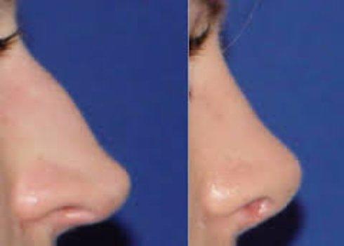 Септопластика помогает от заложенности носа и кровотечений