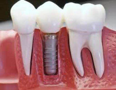 Имплантация зубов — верное решение современного человека