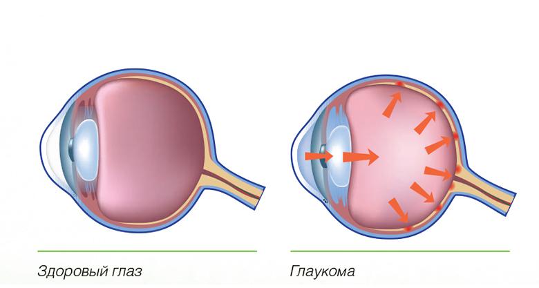 Крымчане имеют проблемы со зрением